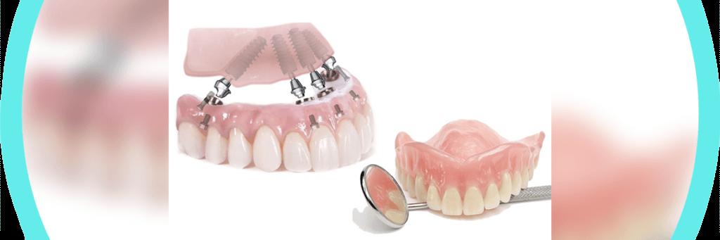 Имплантация и протезирование зубов All on 4
